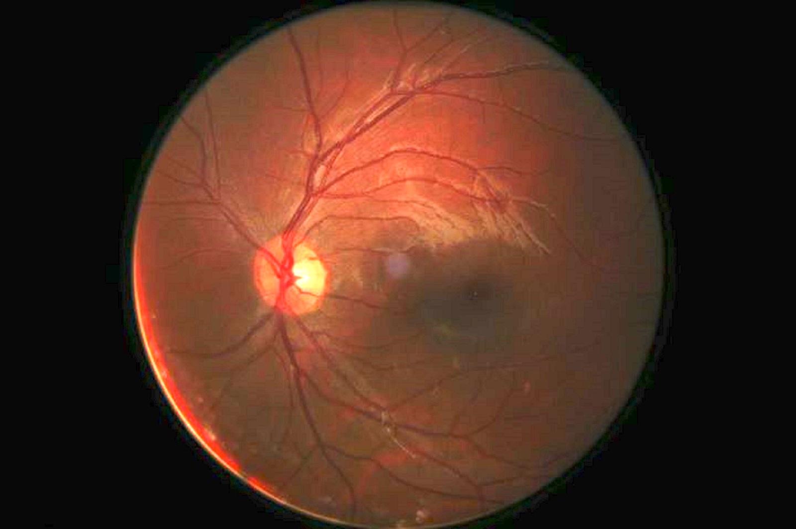 care nerv este responsabil pentru vedere