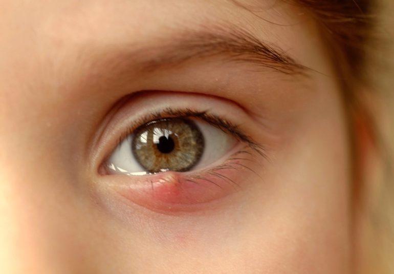 ulcior la ochi sau orjelet