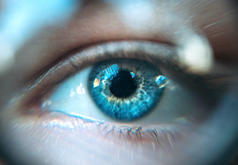 hipertensiunea oculara